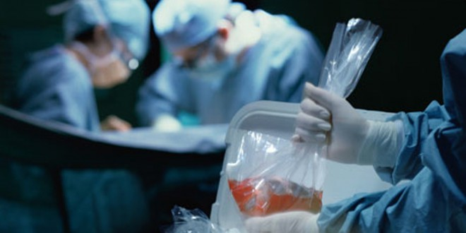 human-organ-transplant